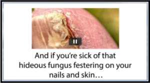 how-to-cure-fungus-infections